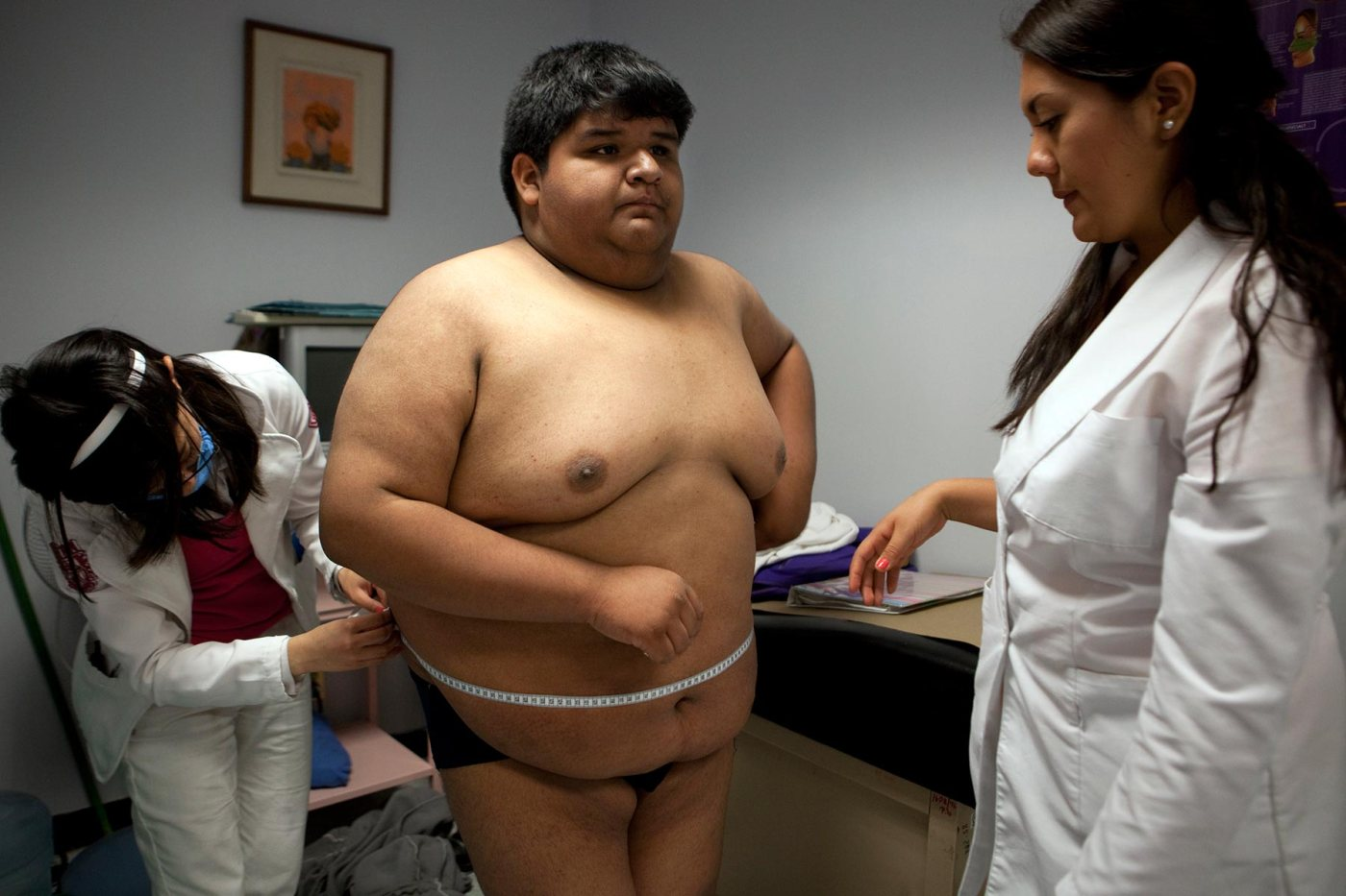 Childhood morbid obesity in Mexico